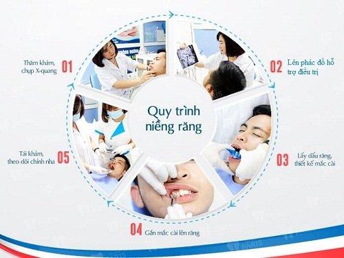 quy trình và thời gian niềng răng 2
