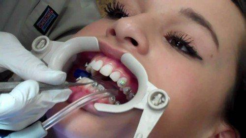 quy trình và thời gian niềng răng 4