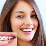 Trước khi niềng răng NHẤT ĐỊNH PHẢI NẮM RÕ quy trình và thời gian chỉnh nha