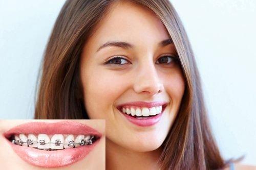 quy trình và thời gian niềng răng 7