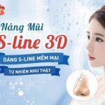Phẫu thuật nâng mũi S line 3D TẠO dáng đẹp tự nhiên như ý