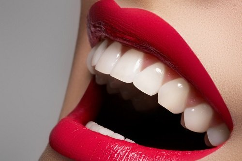 tẩy trắng răng 1
