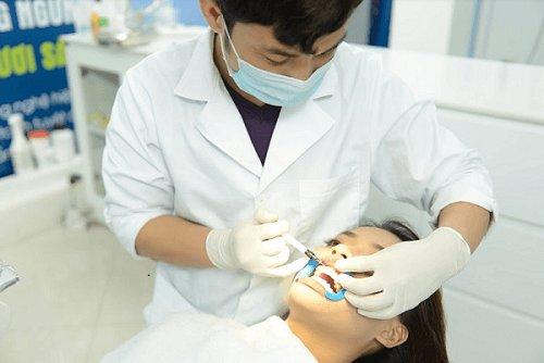tẩy trắng răng 11