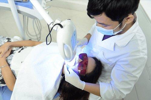 tẩy trắng răng 13