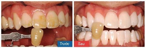 tẩy trắng răng 14