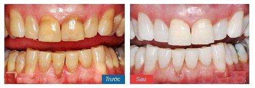 tẩy trắng răng 15