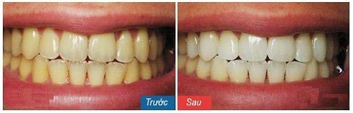 tẩy trắng răng 16
