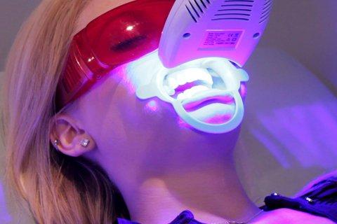 tẩy trắng răng 8