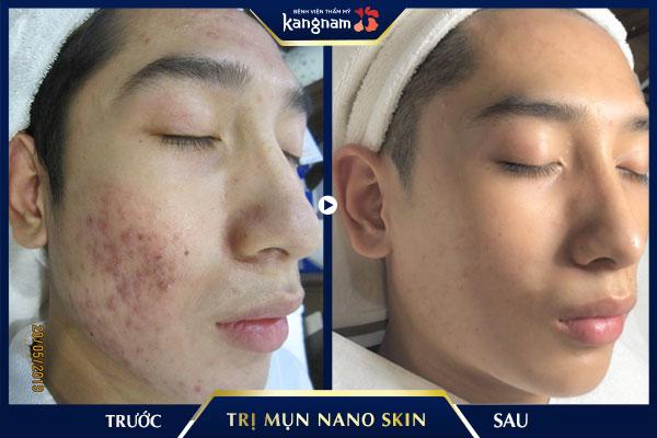 kết quả trị mụn nano skin