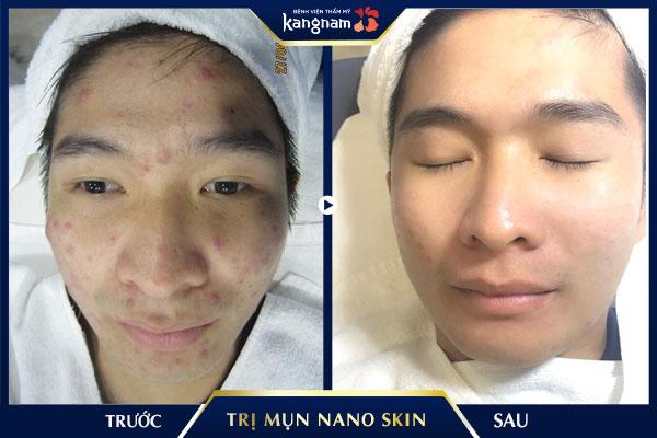 hình ảnh trị mụn nano skin