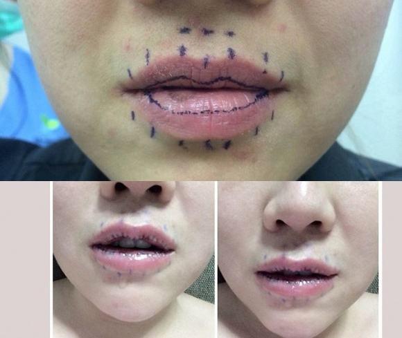 Làm mỏng môi có an toàn không?11