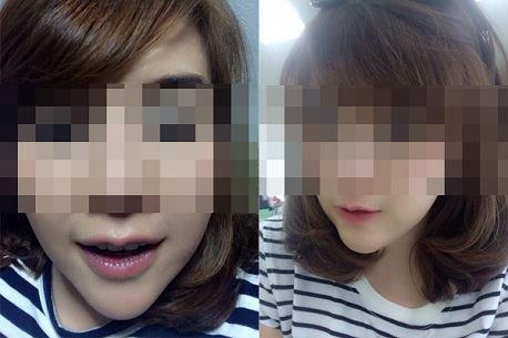 Làm mỏng môi có an toàn không?22