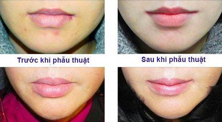 Cắt môi dày thành mỏng bao lâu thì lành?12