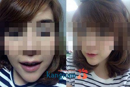 Cắt môi dày thành mỏng bao lâu thì lành?7