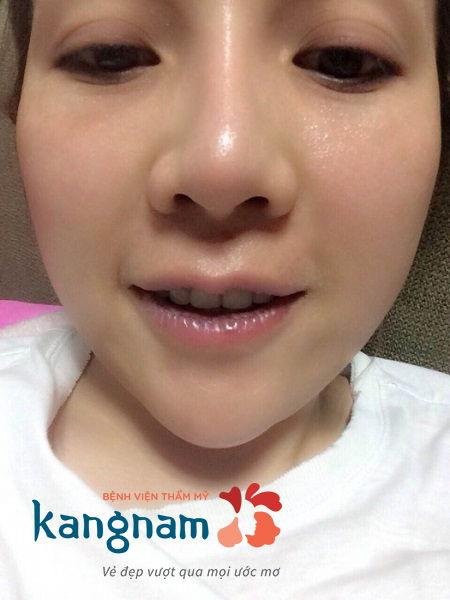 Cắt môi dày thành mỏng bao lâu thì lành?6