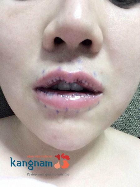 Cắt môi dày thành mỏng bao lâu thì lành?5