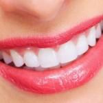 Phẫu thuật chỉnh hàm hô kết hợp niềng răng – Mặt đẹp toàn diện