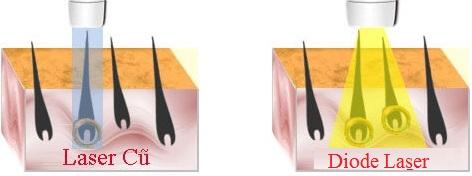 Ánh sáng Diode Laser mang tới nguồn năng lượng cao hơn dễ dàng loại bỏ các chân lông