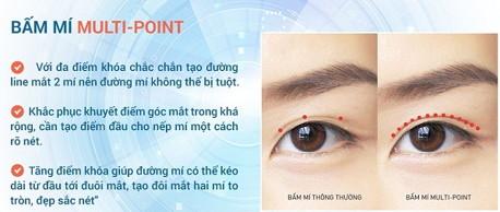 bấm mí mắt multi point 6