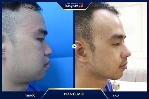 Nâng mũi L-Line cho nam kangnam