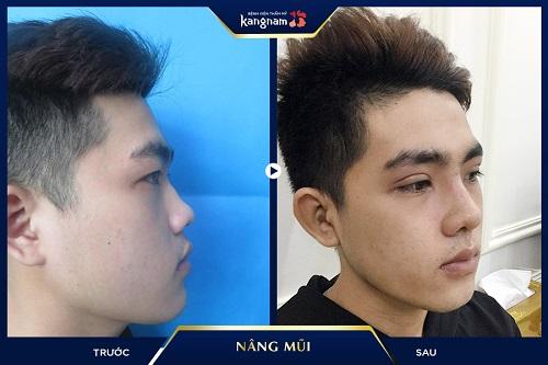 kết quả Nâng mũi L-Line cho nam