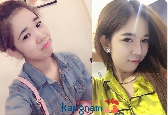 nâng mũi kangnam 4