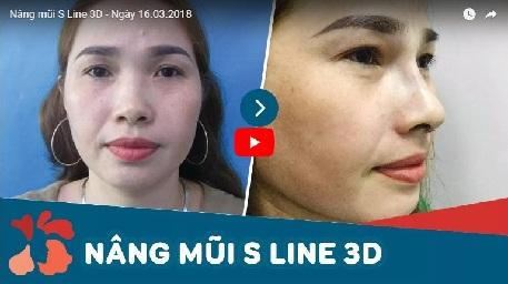 nâng mũi s line 3d 1