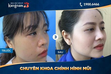 nâng mũi 3d kangnam