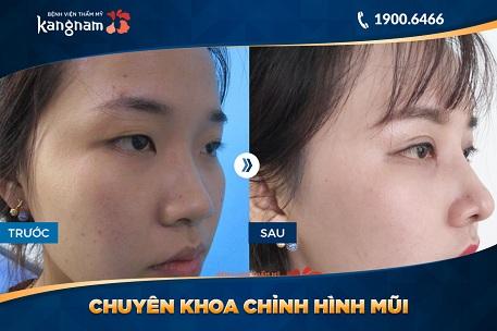 nâng mũi s line 3d tại tmv kangnam
