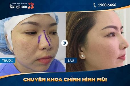 phẫu thuật mũi s line