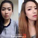 """Tận mắt chứng kiến khách hàng """"lột xác"""" sau nâng mũi L-Line tại Kangnam"""