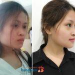 Khuyến cáo của chuyên gia về gọt mặt theo quy trình chuẩn – Đảm bảo an toàn