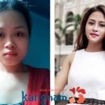 Khuôn mặt Phương Tuyền hoàn toàn thay đổi sau nâng mũi, gọt hàm tại Kangnam