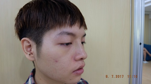 cận cảnh Nhật ký nâng mũi