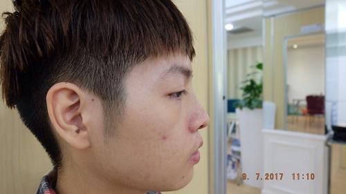 Nhật ký nâng mũi 5 ngày
