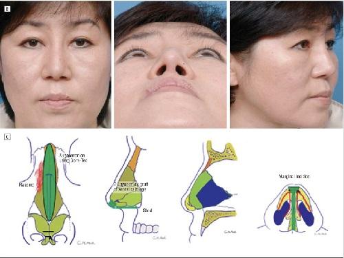 nâng mũi kangnam