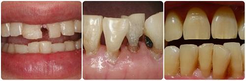 Chỉ định bọc răng sứ cho các đối tượng răng xấu, hỏng