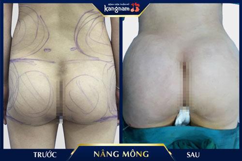 hình ảnh nâng mông kangnam