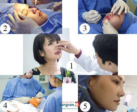 Chỉnh hình mũi phức tạp 3
