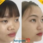 Nâng mũi cấu trúc 4D có gì khác biệt so với công nghệ nâng mũi khác?