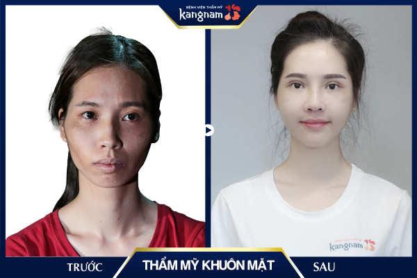 thẩm mỹ khuôn mặt tại kangnam