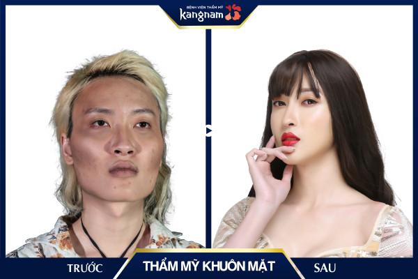 thẩm mỹ khuôn mặt bvtm kangnam