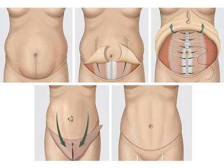 quy trình Tạo hình Body S-line