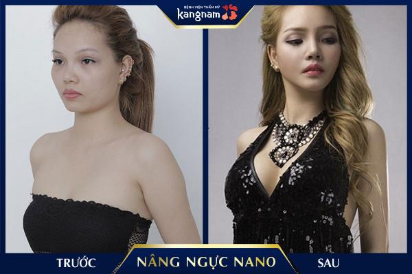 Nâng ngực Kangnam Minh Tuyết