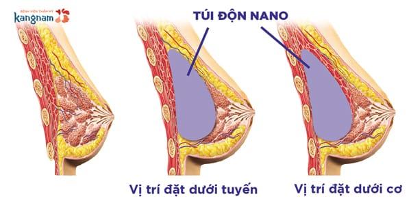 nâng ngực Nano 4.0
