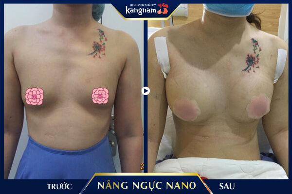 kết quả nâng ngực nano