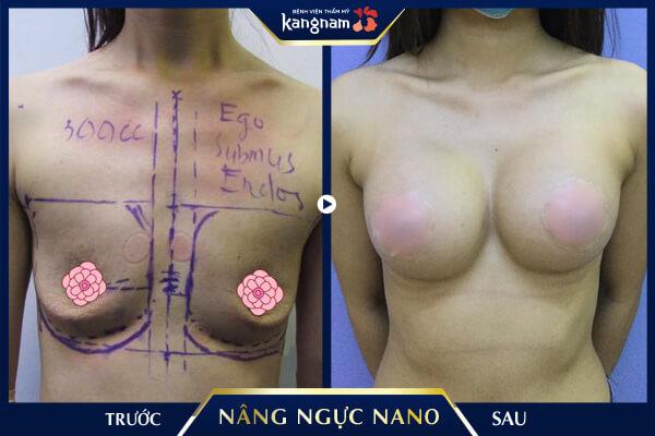 hình ảnh nâng ngực nano