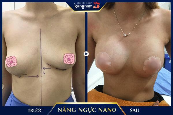 khách hàng nâng ngực nano