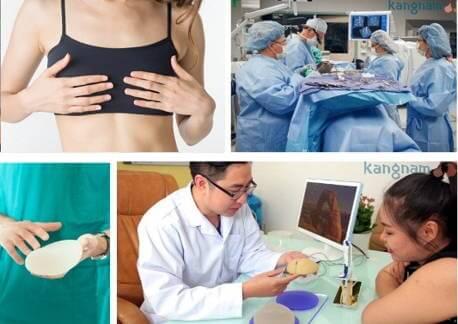 quy trình nâng ngực nano