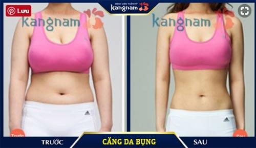 căng da bụng ở kangnam
